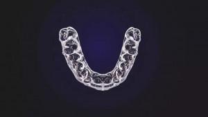 Kako održavati usta i zube čiste dok nosite retener