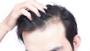 Tri zdravstvena poremećaja uslijed kojih je moguće ostati bez kose za vrlo kratko vrijeme