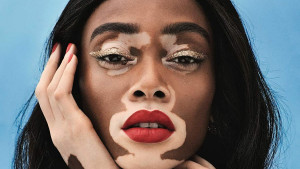 Manekenka s vitiligom koja pomjera granice modne industrije