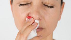 Kako zaustaviti krvarenje nosa?