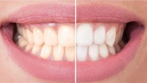 Prirodni načini da izbijelite zube