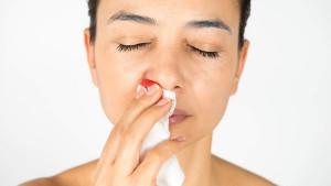 Šta uzrokuje krvarenje iz nosa