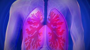 Simptomi raka pluća na koje bi i nepušači trebali obratiti pažnju