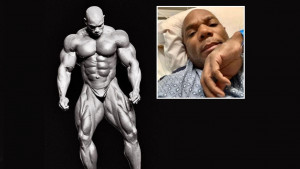 Legendarnom bodybuilderu Flexu Wheeleru ljekari morali amputirati dio noge