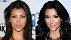 Kim Kardashian i sve plastične operacije