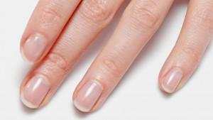 Evo šta vam vaši nokti govore o zdravlju