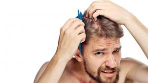 Savjeti za muškarce: Smanjite opadanje kose uz ove trikove