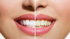 Izbjegavajte ove namirnice i napitke i riješite se problema žutih zubi