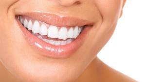 Namirnice koje će vaš osmijeh učiniti savršenim