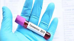 Kako se nositi s anksioznošću zbog koronavirusa?