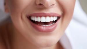 Prirodne metode za izbjeljivanje zuba