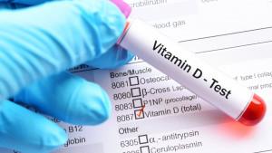 Manjak vitamina u tijelu: 7 znakova da vam nedostaje vitamina D