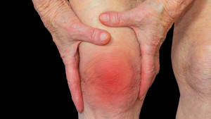 Šta je reumatoidni artritis?