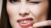 Namirnice koje uzrokuju pojavu akni