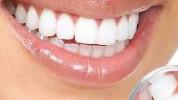 2 domaća recepta za uklanjanje kamenca sa zuba