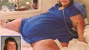 Najteža osoba na svijetu je imala oko 726 kg