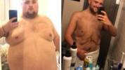 >Smršao 115 kg i skuplja novac za uklanjanje kože