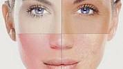Kako se hraniti ako vidite ove promjene na licu?
