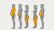 Pet tipova gojaznosti i njihovi uzročnici