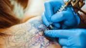 Uklanjanje tetovaža: Sve što treba znati o procesu