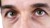 Umorne oči: Riješite ih se pomoću 3 brza trika