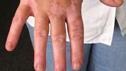 Šta je to vitiligo?