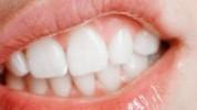 Oralne bakterije