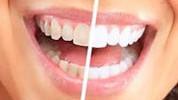 Izbjeljivanje zuba u domaćim uslovima