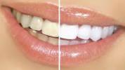 Domaća pasta za izbjeljivanje zuba