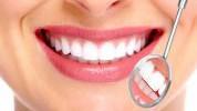 Greške zbog kojih žute zubi