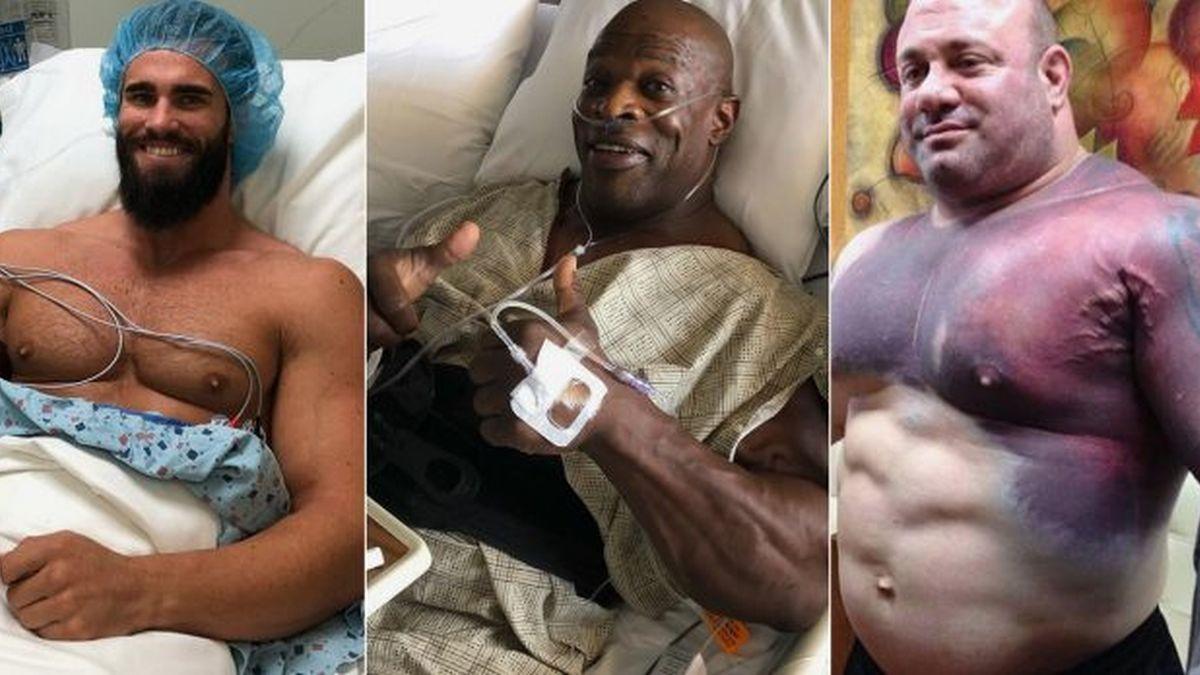 Četiri najgore povrede u bodybuildingu ikada