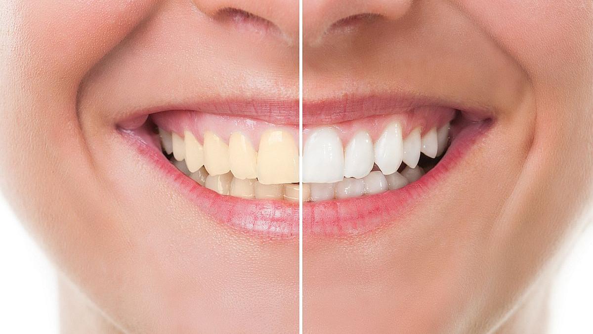 Mogu li proizvodi za izbjeljivanje zaista oštetiti vaše zube?