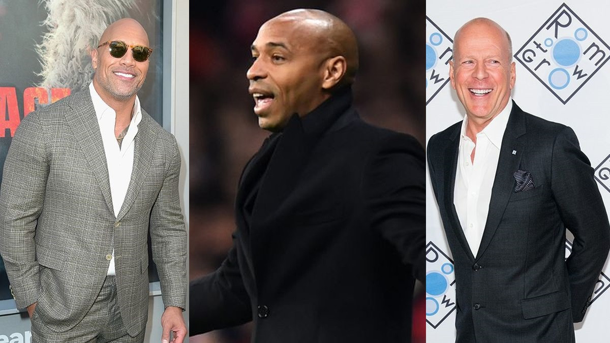 Gubitak kose nije tragedija: Muškarci koji bolje izgledaju ćelavi nego prije sa kosom