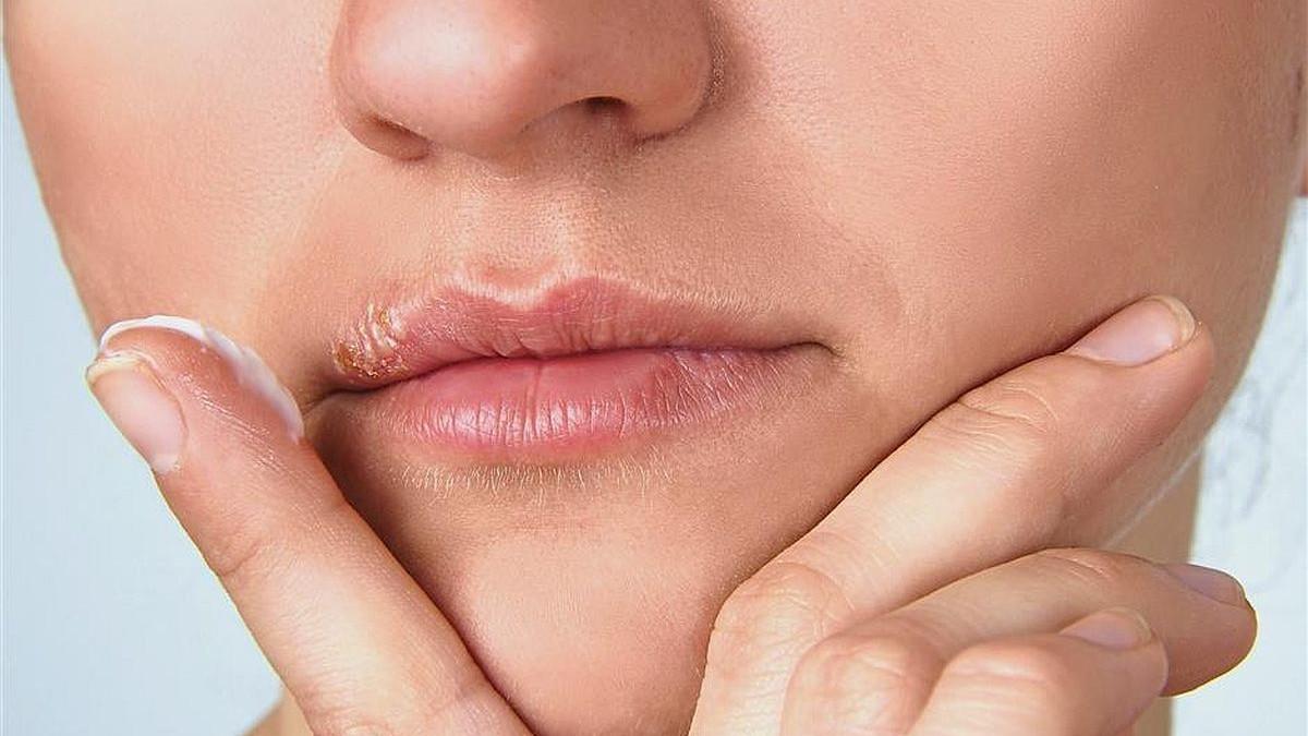 Na vrijeme spriječite pojavu herpesa