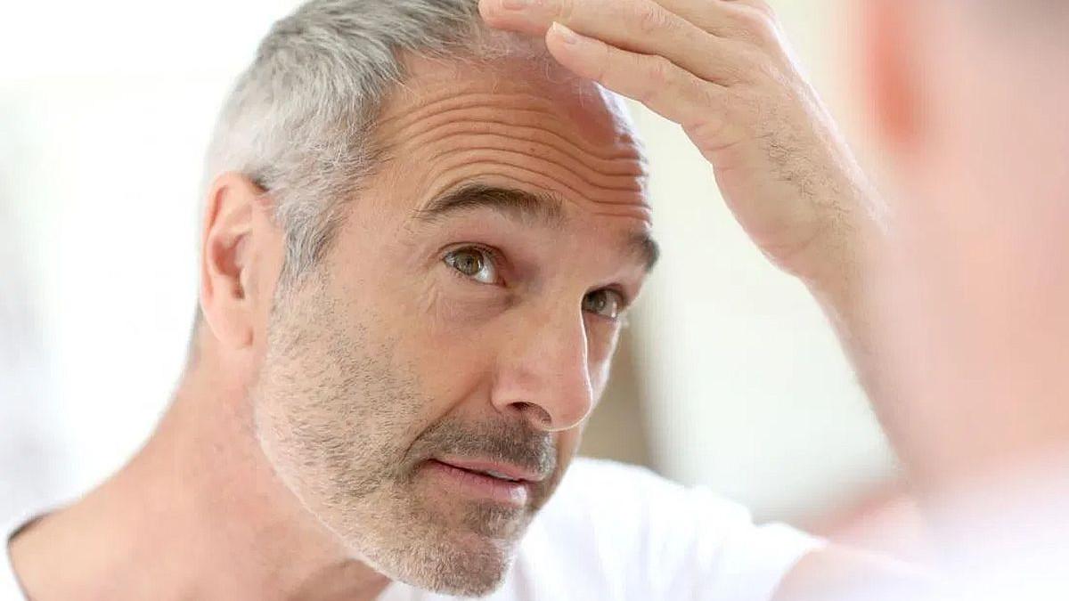 Spasite svoju kosu od opadanja uz pomoć ovih vitamina
