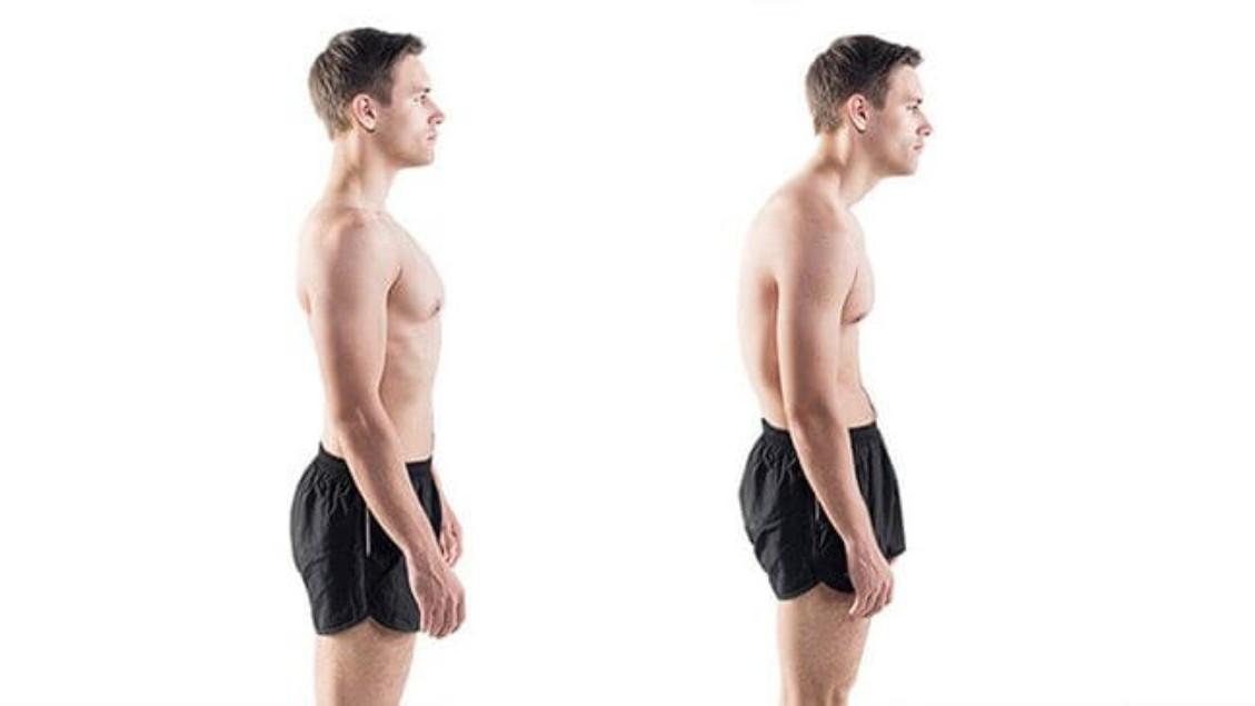 Kako loše držanje utječe na vaše zdravlje?
