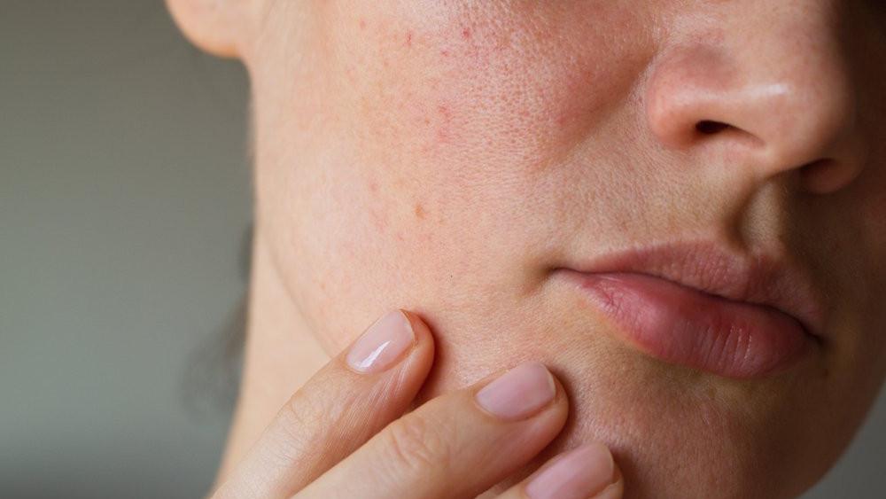 Šta vam koža govori o vašem zdravlju?