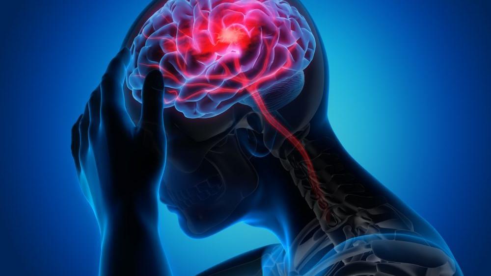 Najčešći uzroci migrene
