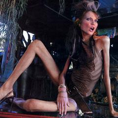 Šokantne slike anoreksičnih djevojaka