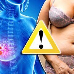 Mršanjem do drastičnog smanjenja rizika od raka