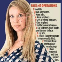 Njoj je i 300 estetskih operacija bilo malo