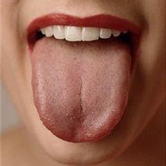 Isplazite jezik i saznajte koliko ste zdravi