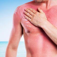 Kako pomoći koži izgorjeloj na suncu?