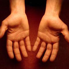 Tragovi na rukama otkrivaju skrivene bolesti