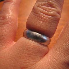 Kako skinuti zaglavljeni prsten sa natečenog prsta