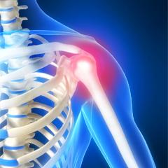Savjeti za uklanjanje bolova u zglobovima
